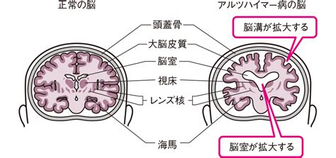 Images of アルツハイマー病 Page 2 - JapaneseClass